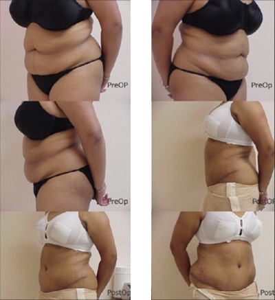 intervencion de Abdominoplastia
